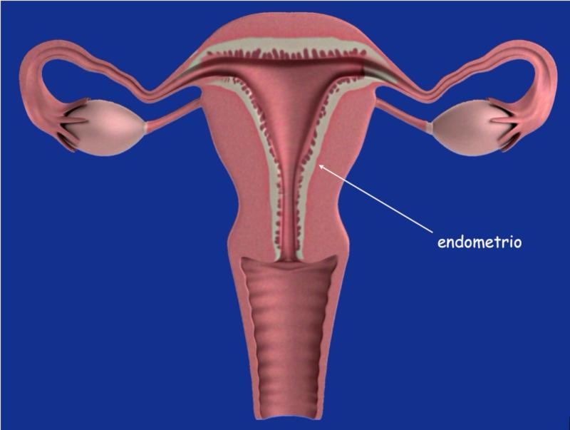 Dibujo del útero y el endometrio